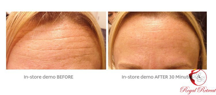 Mesotherapy-before-and-after-picture